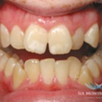 How Much do Invisible Adult Braces Cost