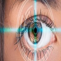 Laser Glaucoma Surgery for Eye Pressure