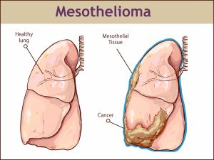 Mesothelioma asbestos cancer lawsuits and attorney.